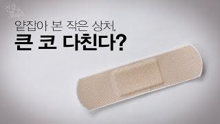 함부로 긁지 마세요!  작은 상처가 불러온 감염질환, 봉와직염 미리보기