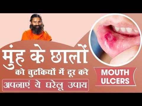 मुंह के छालों (Mouth ulcers) को चुटकियों में दूर करे अपनाएं ये घरेलू उपाय   Swami Ramdev