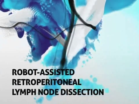 Retroperitoneal Lymph Node Dissection