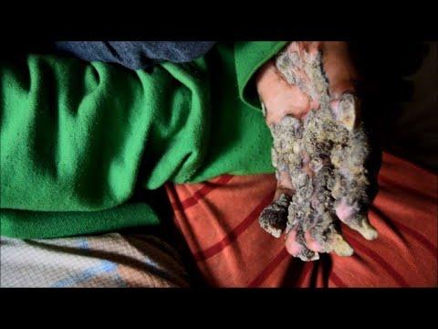 Video Au Bangladesh, cruelle rechute pour Abul,