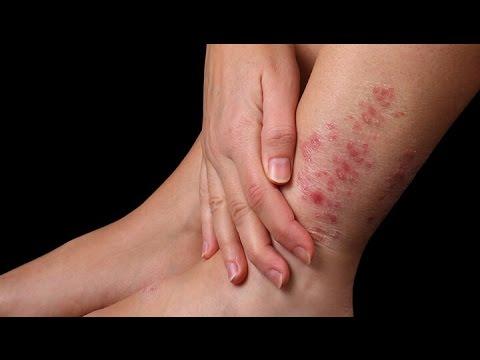 где лечить кожные заболевания в россии