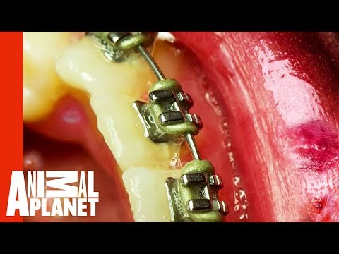 How Orthodontic Braces Nearly Killed A Teenager | Monsters Inside Me