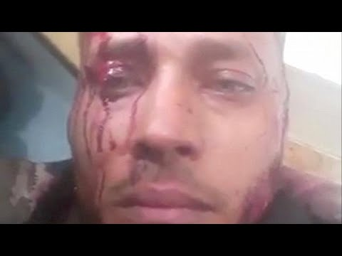 Βενεζουέλα: Συγγενείς απαιτούν αποδείξεις για το θάνατο του «Ράμπο»…