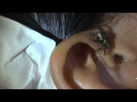 usuwanie-zywego-pajaka-z-ucha-pacjenta