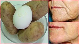 Video ANTI - AGING, LIFT TIGHTEN FIRM SKIN, TRANSFORM YOUR SKIN, LOOK YEARS YOUNGER Khichi Beauty MP3, 3GP, MP4, WEBM, AVI, FLV Agustus 2019