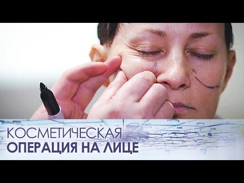 Косметическая операция на лице