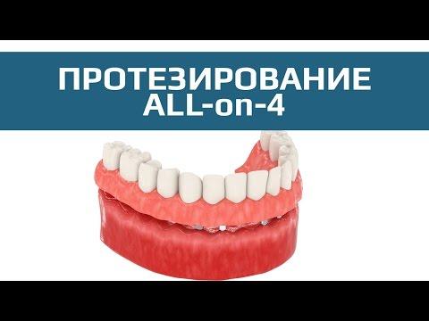 Комплексная имплантация All-on-4