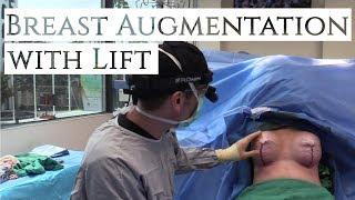 Breast Augmentation with Lift | Dr. Daniel Barrett | Plastic Surgery | Beverly Hills