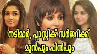 Video Actresses Before And After Plastic Surgery | Filmibeat Malayalam MP3, 3GP, MP4, WEBM, AVI, FLV Juni 2018