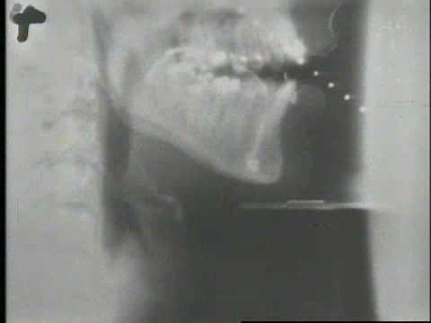 throat x ray Deep