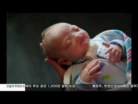 코없는 '기적의 아기' 끝내 숨져 6.05.17 KBS America News