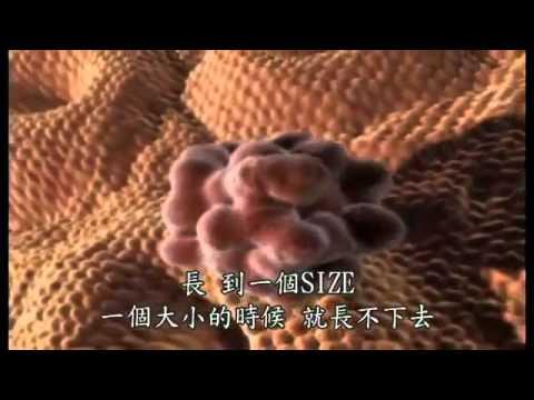 [分享]王輝明醫師說明大腸癌怎麼發生