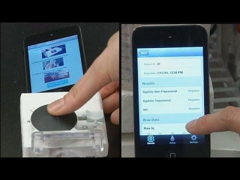 Akıllı telefonlar Aids testi yapacak