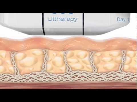 Ultherapy Process Animation