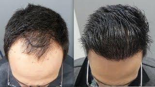 Video 2401 Grafts. Hair Transplant by FUE Technique.. Injertocapilar.com.1878/2017 MP3, 3GP, MP4, WEBM, AVI, FLV Juli 2018