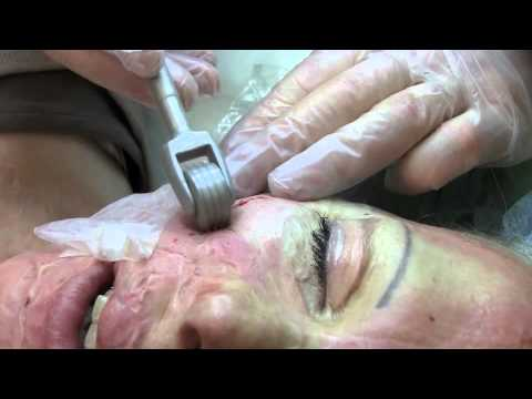 Burn Scar Treatment Dermaroller®