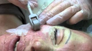 Burn Scar Treatment Dermaroller® 4134854 YouTube-Mix