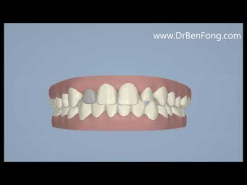 Invisalign Results for Jehovany G.| Before & After | www.invisalignresults.ca
