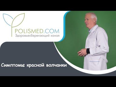 Формы и виды красной волчанки. Симптомы красной волчанки - DomaVideo.Ru