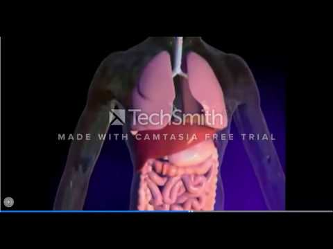 Lumacaftor–Ivacaftor in Patients with Cystic Fibrosis Homozy