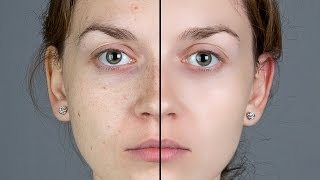 Photoshop Tutorial: How to Quickly Smooth Skin and Remove Blem...