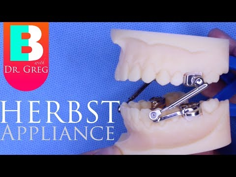 [BRACES EXPLAINED] Herbst Appliance
