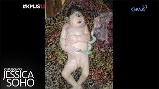 Video Kapuso Mo, Jessica Soho: Ang Cyclops Baby ng Sultan Kudarat MP3, 3GP, MP4, WEBM, AVI, FLV September 2018