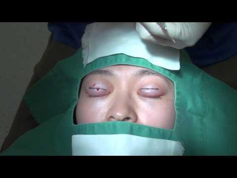 手術前に使われる「局所麻酔」とは?