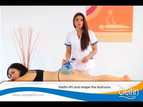 Buttocks Lifting with Delfin Cups
