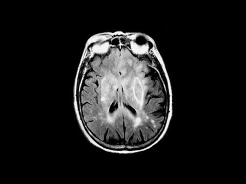 A Febrile Toddler Played With His Cat. This Is How His Brain Shut Down.