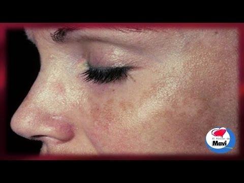 manchas en la piel - Como eliminar las manchas solares o marrones de la piel - Cuidados de la piel. Las manchas solares, también llamadas manchas de la edad, manchas hepáticas o ...
