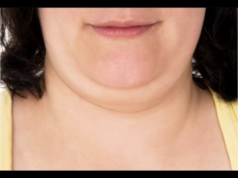 How to Get Rid of Double Chin Fast - Double Chin Exercises