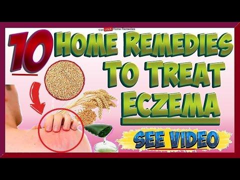 Top 10 Home Remedies & Treatments for Eczema (видео)