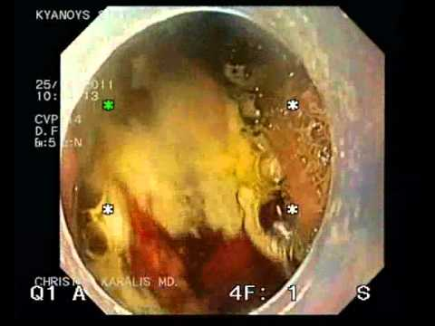 Radiofrequency Ablation Of Halo 360 Method After Endoscopic Mucosal Removal Of Cancerous Nodule.