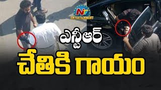After Ram Charan, NTR Suffers Injury | Jr NTR Suffers Right Hand Wrist Injury