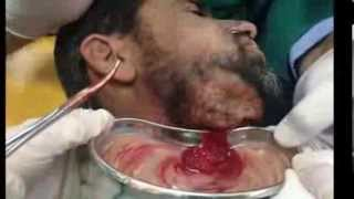 Hilton method for abscess drainage Buccal space (Subcutaneous
