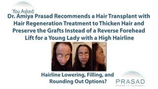 Video How a Hair Transplant with ACell ECM can Give Better Hairline Lowering than a Reverse Forehead Lift MP3, 3GP, MP4, WEBM, AVI, FLV Agustus 2018