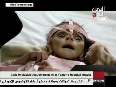 Yemen Today Channel English News