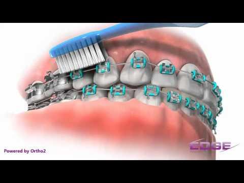 Ortodontik Tedaviler Esnasında Diş Fırçalamak