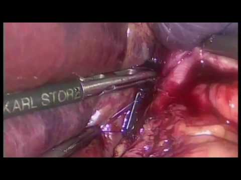 Intracorporeal laparoscopic suturing