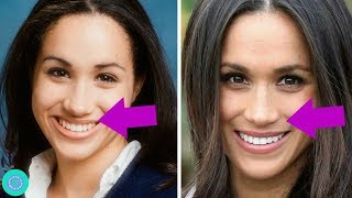 Video Meghan Markle Transformation, Weight Loss  and Plastic Surgery MP3, 3GP, MP4, WEBM, AVI, FLV Juli 2019