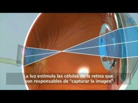 Retina - El desprendimiento de retina afecta anualmente a una de cada 10.000 personas. Se trata de un problema visual grave que puede ocurrir a cualquier edad, aunque...