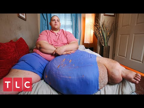 He Carries a 100-lb Mass On His Leg! | My 600-lb Life