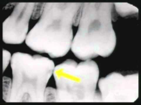 Digital X-Rays for Dental Diagnosis - California Dental Group