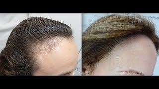 Video 1401 FU's. Hair Transplant by FUE Technique. Forehead reduction. Injertocapilar.com. 812/2012 MP3, 3GP, MP4, WEBM, AVI, FLV Juli 2018