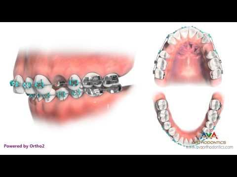 Üst Premolar Çekimli Ortodontik Tedavi