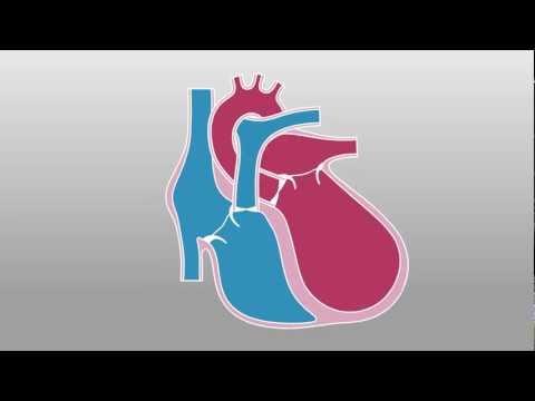 Heart Dyssynchrony