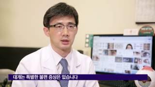 소아 사시 수술의 회복시기 미리보기