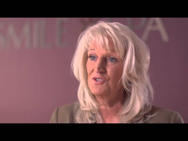 The Smile Spa Dental Implant patient experience – Alexandra