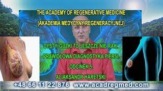 Cysty, Guzki to Jeszcze Nie Rak. Prawidłowa Diagnostyka Piersi- Aliaksandr Haretski.